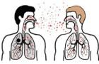 Tuberkuliozės prevencija